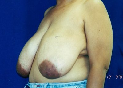 breast-reduction-before-07
