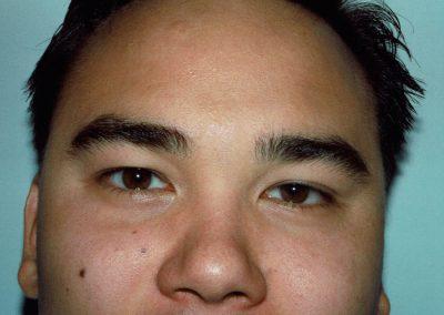eyelift-i1-before