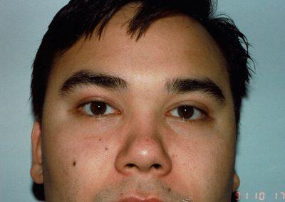 eyelift-i2-after
