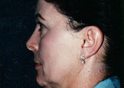 facelift-before-11