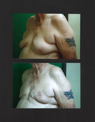 gynecomastia-01