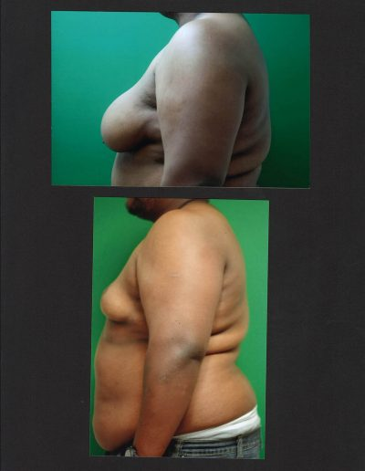 gynecomastia-06