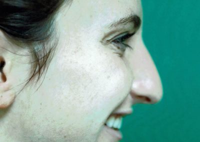rhinoplasty-before-14