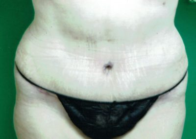tummy-tuck-1b-after