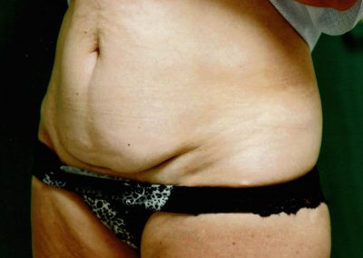 tummy-tuck-2a-before