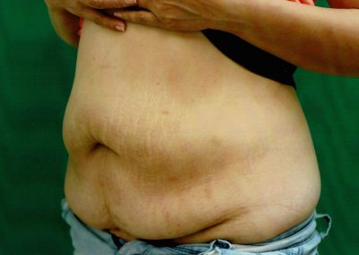 tummy-tuck-3a-before