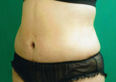 tummy-tuck-3b-after