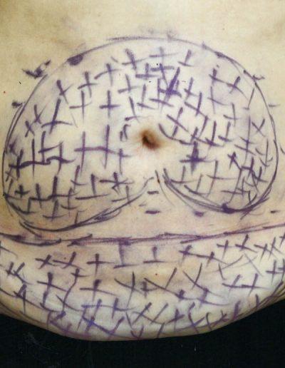 abdominal-before-01