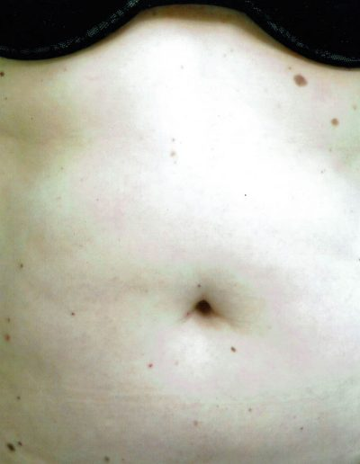 liposuction-a1-before