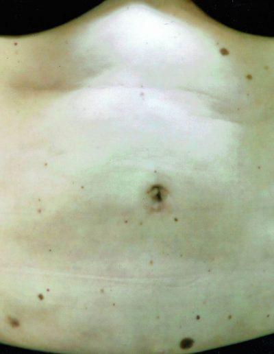 liposuction-a2-after