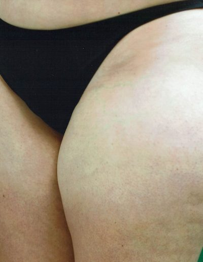 liposuction-b1-before