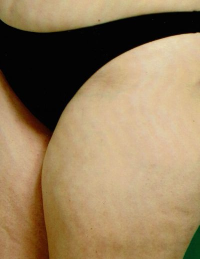 liposuction-b2-after