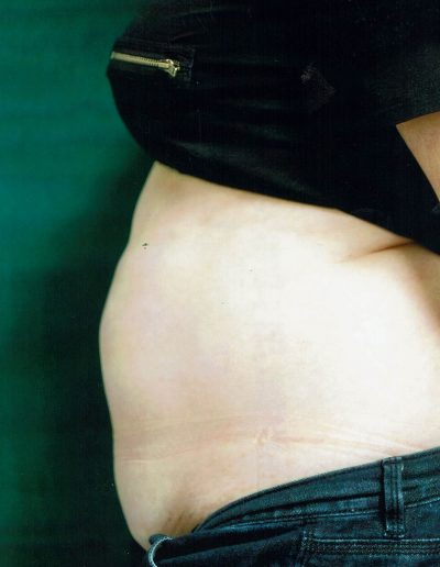 liposuction-d1-before