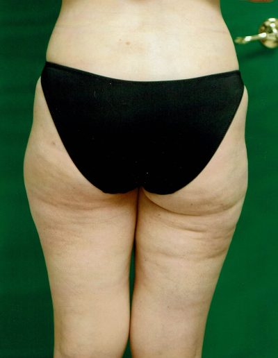 liposuction-e2-after